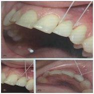 uhod-implant