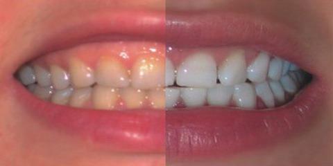 АКЦИЯ «Профессиональная гигиена полости рта»